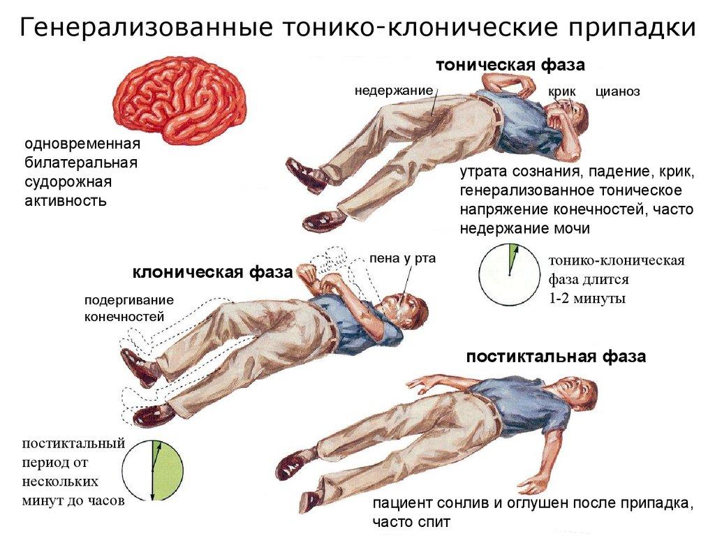 Контузия головного мозга: причины, лечение, последствия | здоровье вашей головы