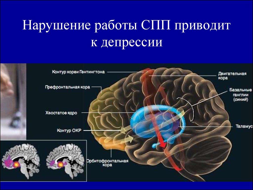 Лечение обсессивно-компульсивного расстройства окр (невроз навязчивости с ритуалами)